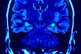 "<span class=""dojodigital_toggle_title"">Omega 3 And Brain Health</span>"