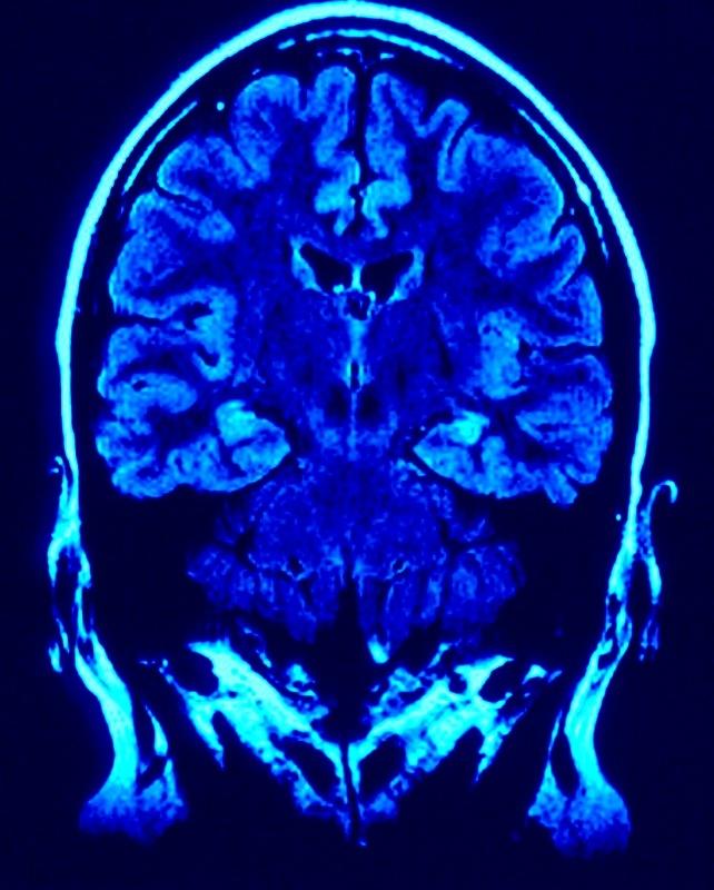 Omega 3 And Brain Health